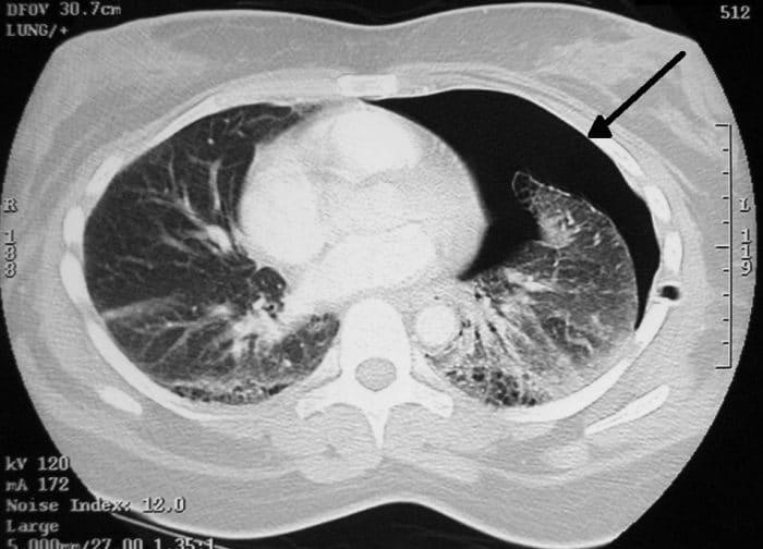 CT scan of pneumothorax