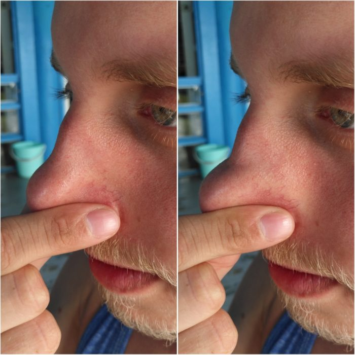 Inflation of the sides of the nose during successful Frenzel equalization.