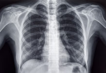 Chest X-ray of an Adult Female Human