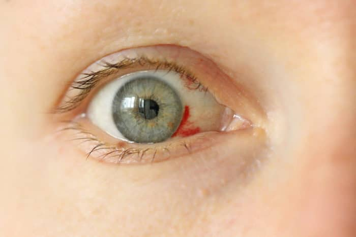 Bloodshot eye.